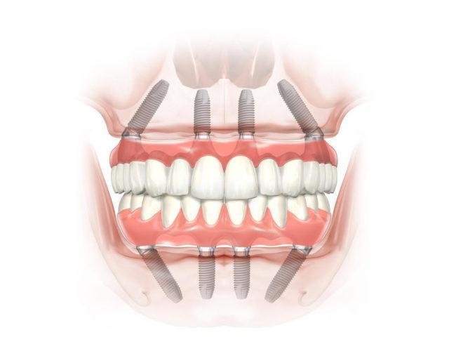Новые зубы за один день (ALL IN 4)