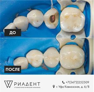https://riadent.ru/wp-content/uploads/2020/11/periodontit3.jpg