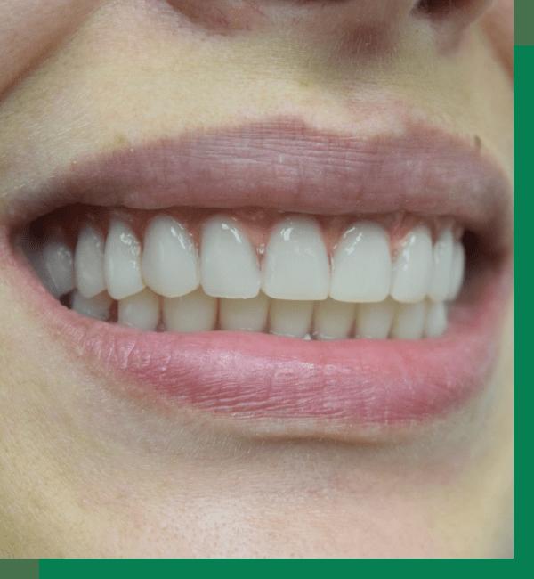 Имплантация зубов (All-on-6)
