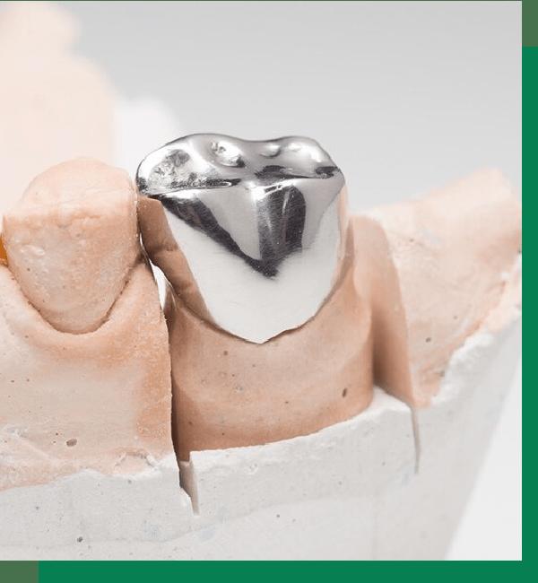 Коронка на зубы
