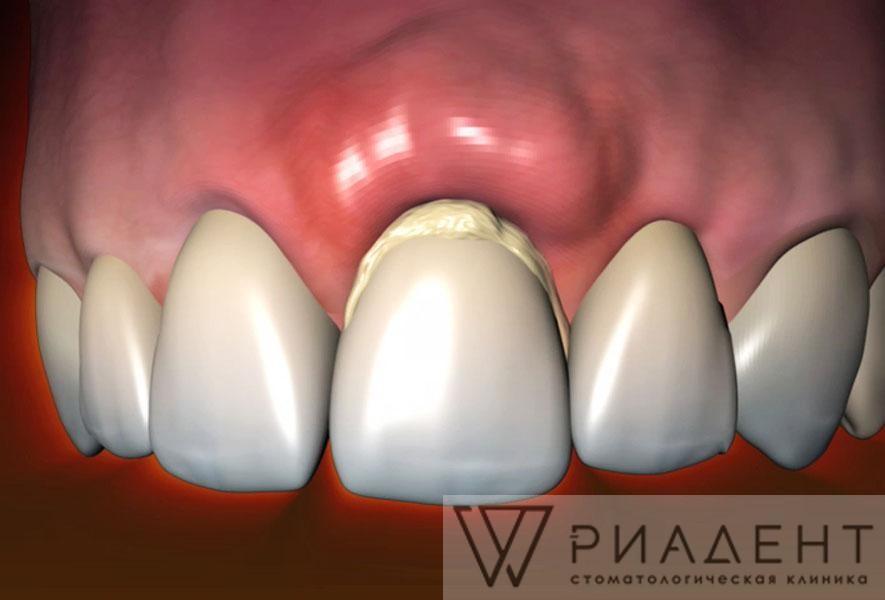 Лечение воспаления зуба
